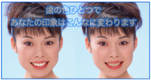 歯の色ひとつであなたの印象はこんなに変わります