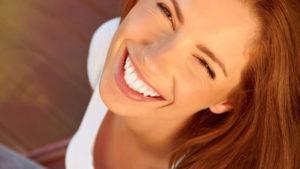 ホワイトニングの白い歯 トップ画像