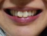 ホワイトニング前の黄ばんだ歯