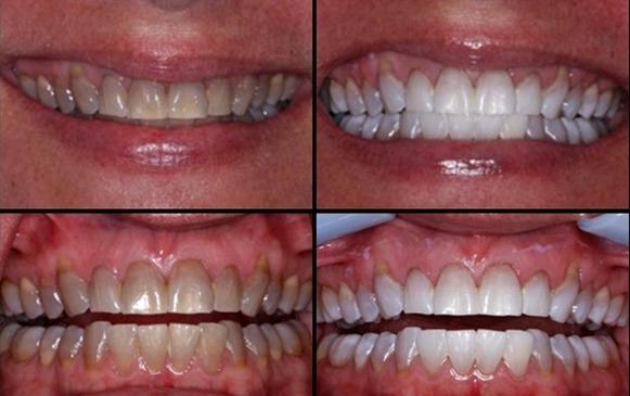 テトラサイクリン歯 をホワイトニング