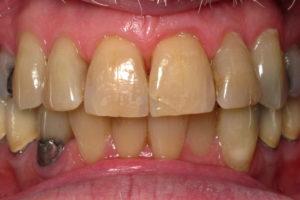テトラサイクリン歯の症例3