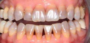 テトラサイクリン歯の症例4