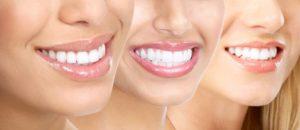 ホワイトニングで歯を白く