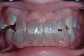 テトラサイクリン歯の症例2