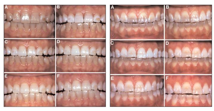 テトラサイクリン歯のホワイトニング臨床結果