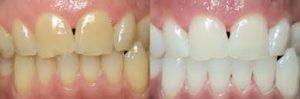 テトラサイクリン歯のホワイトニング症例