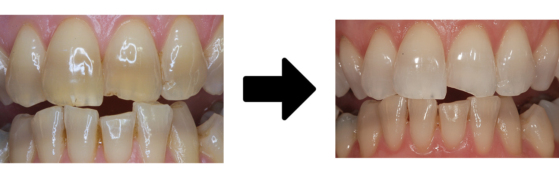 テトラサイクリン歯も白くなる